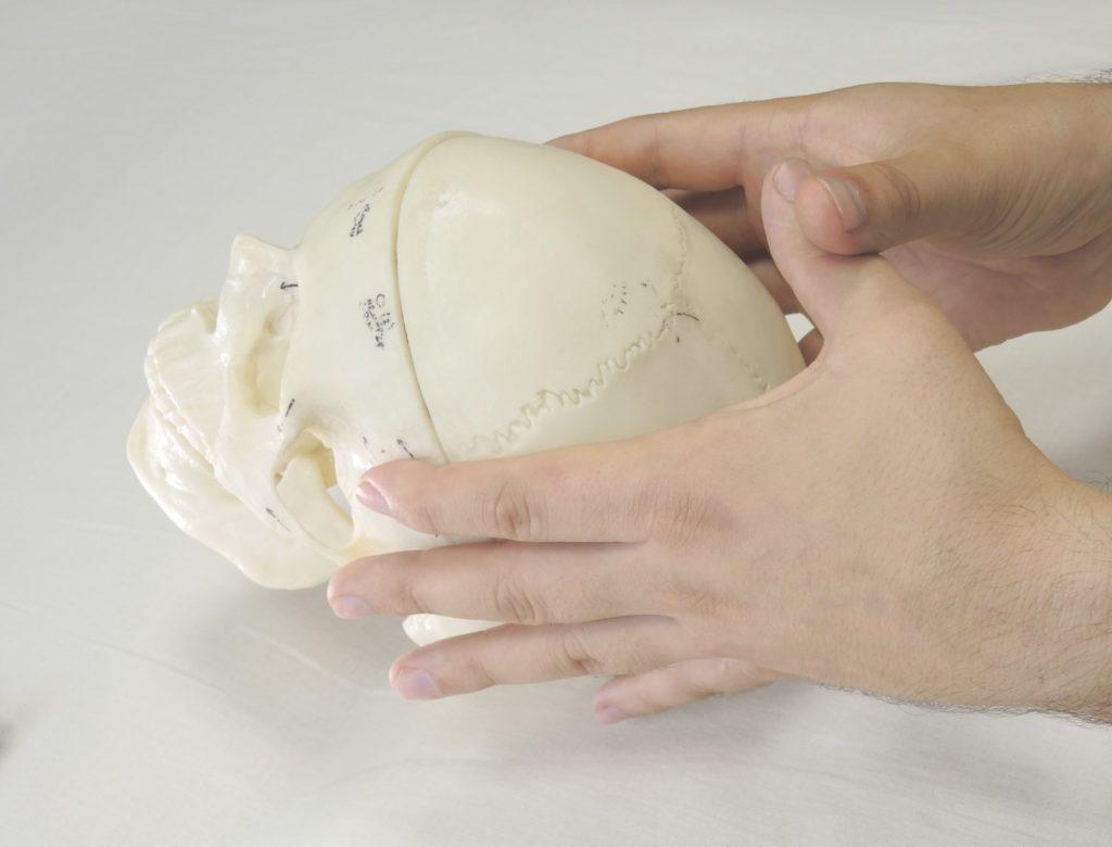 лифт теменной кости - установка рук