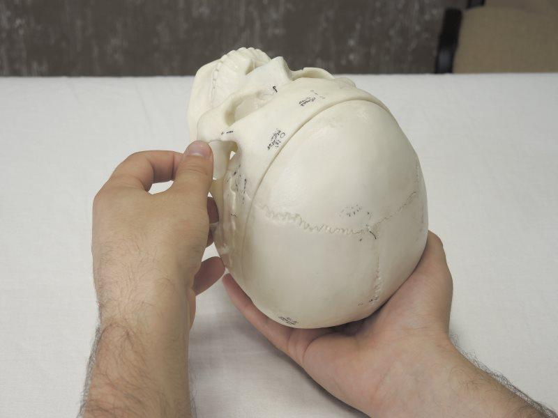 Прямая коррекция затылочно-сосцевидного шва